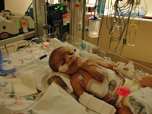 Madeleine Rhoads is pictured at one month old after having her first open heart surgery at the Children's National Medical Center in Washington, D.C. Submitted Photo